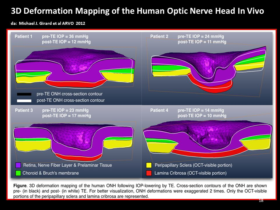 3D Deformation Mapping of the Human Optic Nerve Head In Vivo