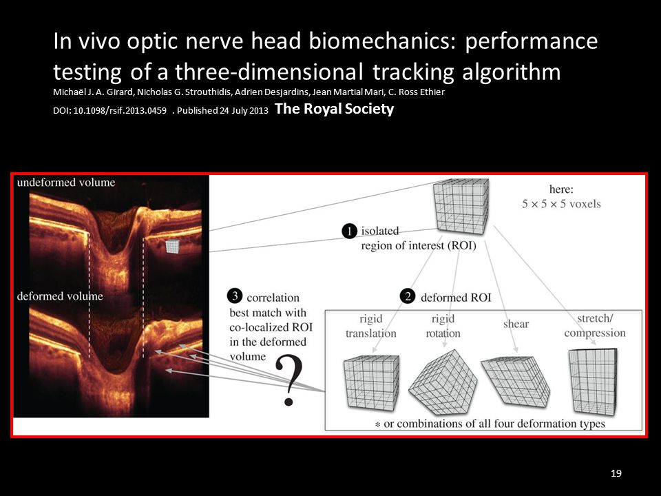 In vivo optic nerve head biomechanics: performance testing of a three-dimensional tracking algorithm