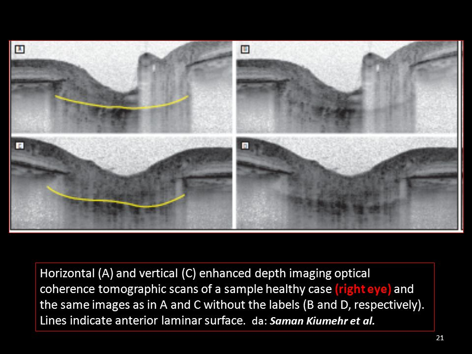 Horizontal (A) and vertical (C) enhanced depth imaging optical coherence tomographic scans of a sample healthy case (right eye) and the same images as in A and C without the labels (B and D, respectively).