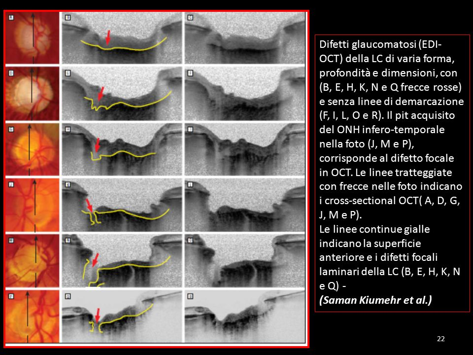 Difetti glaucomatosi (EDI-OCT) della LC di varia forma, profondità e dimensioni, con (B, E, H, K, N e Q frecce rosse) e senza linee di demarcazione (F, I, L, O e R). Il pit acquisito del ONH infero-temporale