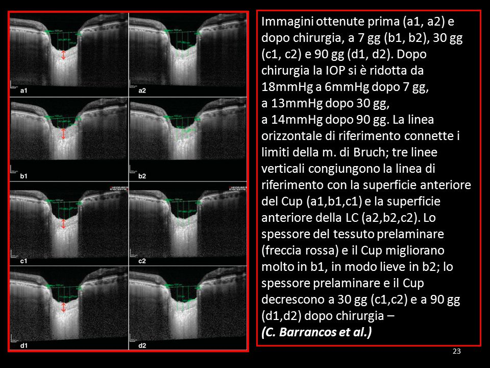 Immagini ottenute prima (a1, a2) e dopo chirurgia, a 7 gg (b1, b2), 30 gg (c1, c2) e 90 gg (d1, d2). Dopo chirurgia la IOP si è ridotta da 18mmHg a 6mmHg dopo 7 gg,