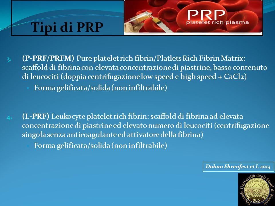 Tipi di PRP
