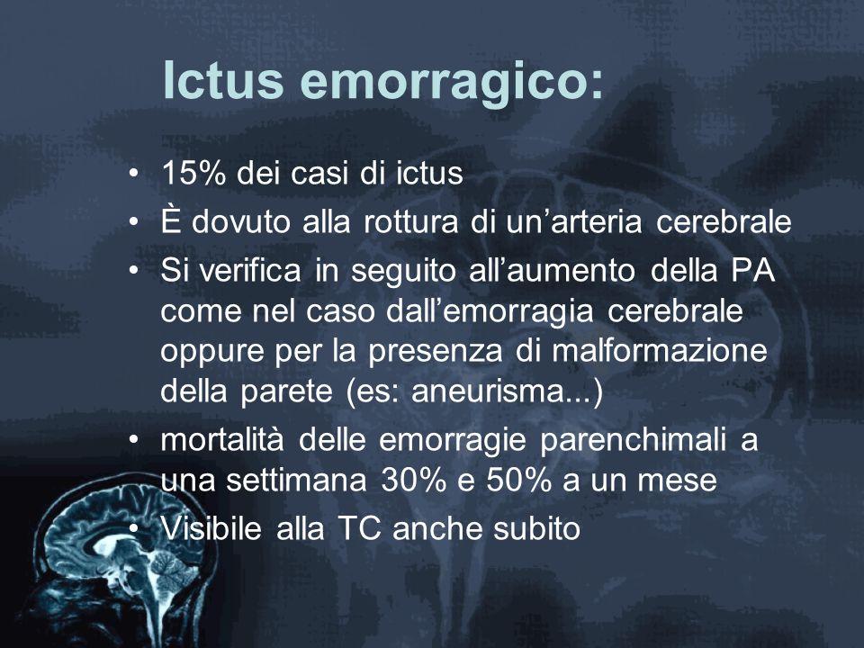 Ictus emorragico: 15% dei casi di ictus