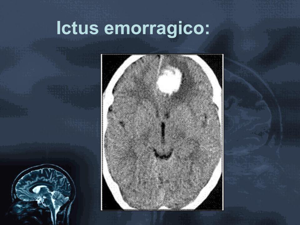 Ictus emorragico: