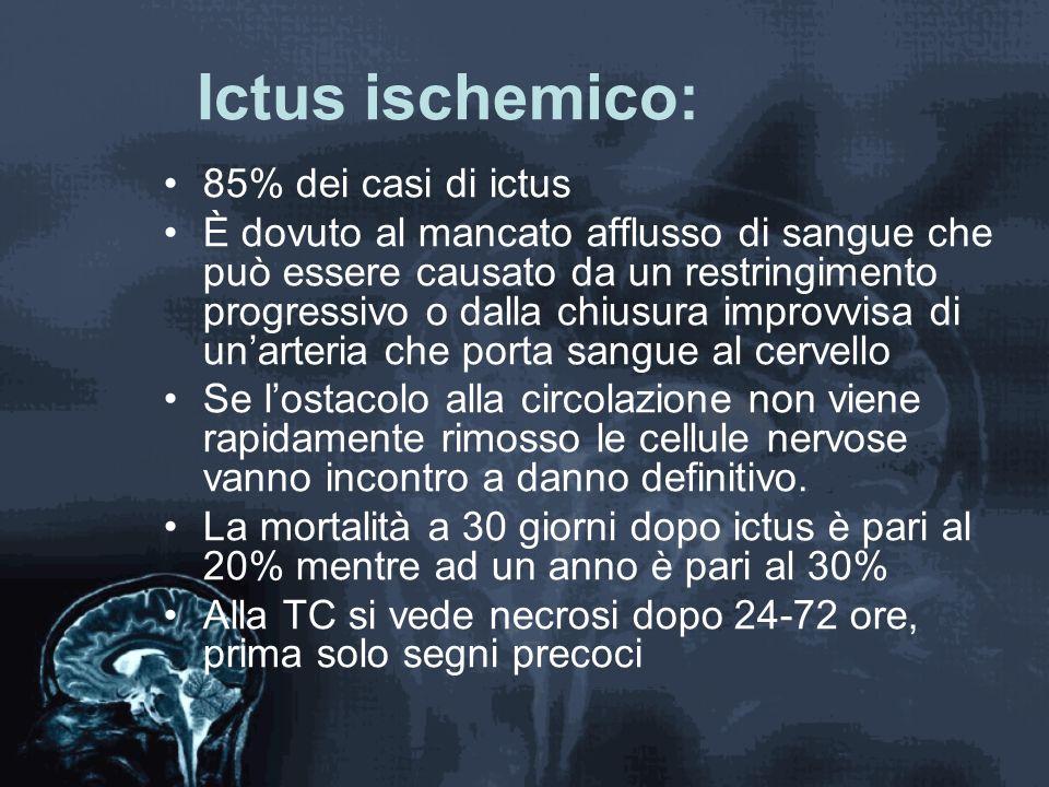 Ictus ischemico: 85% dei casi di ictus