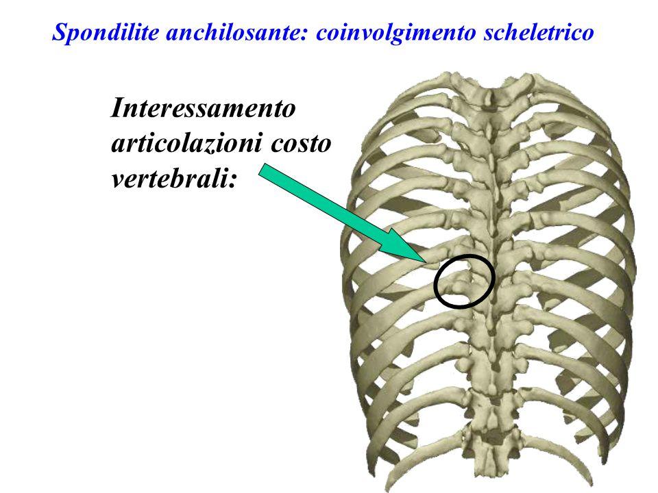 Spondilite anchilosante: coinvolgimento scheletrico