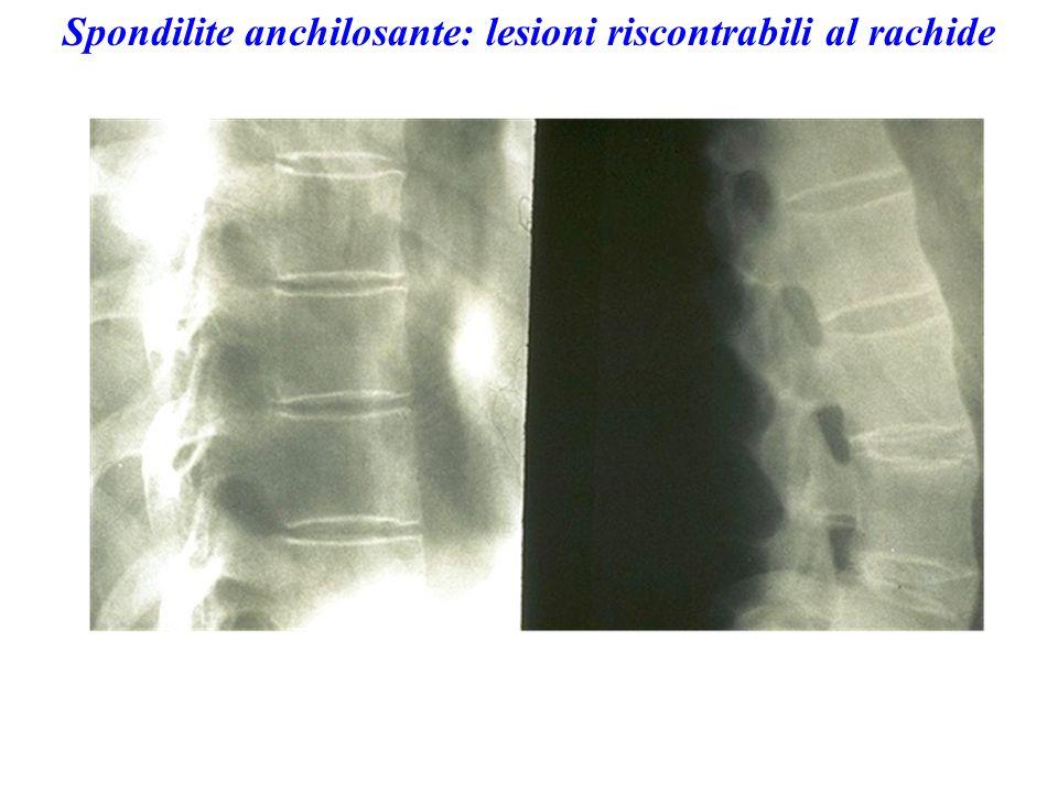Spondilite anchilosante: lesioni riscontrabili al rachide