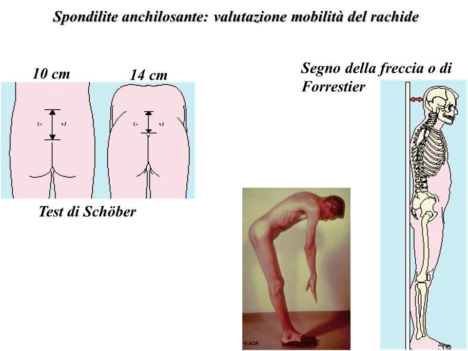 Spondilite anchilosante: valutazione mobilità del rachide