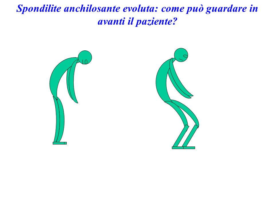 Spondilite anchilosante evoluta: come può guardare in avanti il paziente