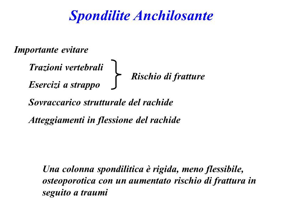Spondilite Anchilosante