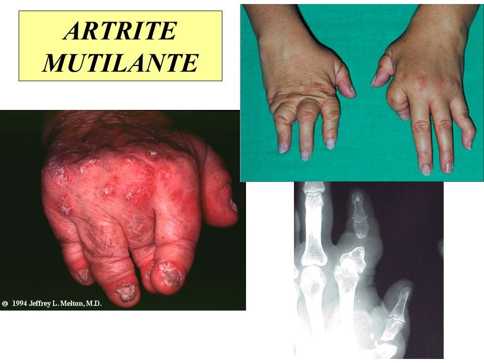 ARTRITE MUTILANTE