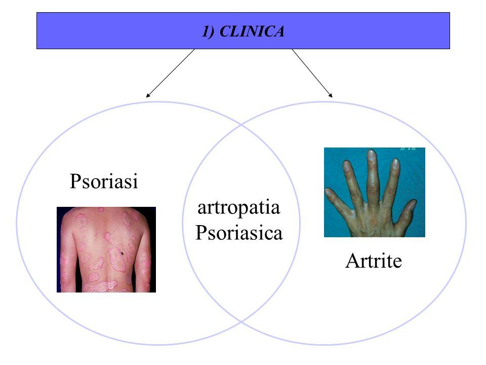 1) CLINICA Psoriasi artropatia Psoriasica Artrite