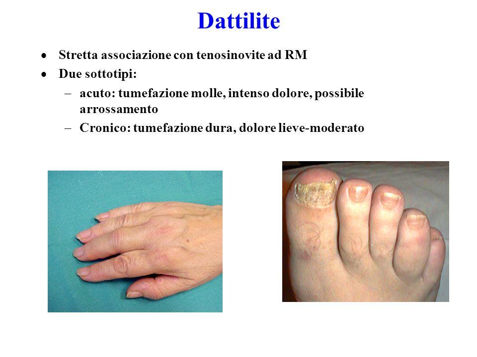 Dattilite Olivieri, J Rheumatol 1997 Helliwell P. J Rheumatol 2005