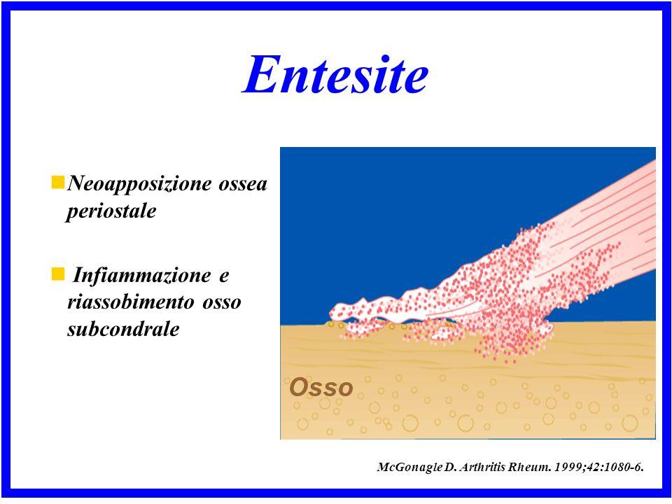 Entesite Osso Neoapposizione ossea periostale