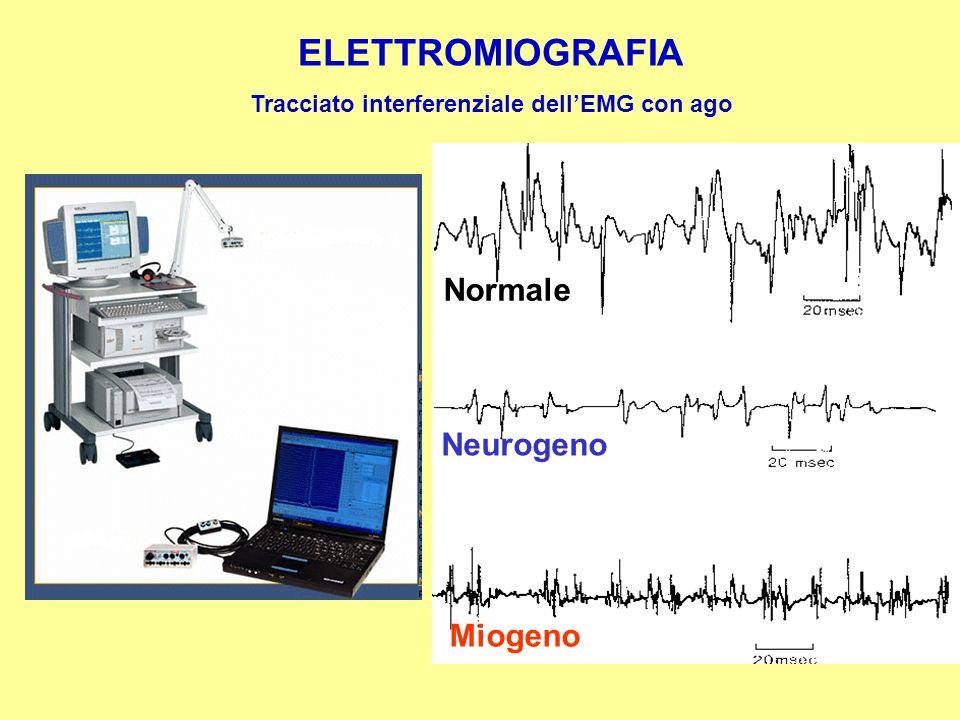 Tracciato interferenziale dell'EMG con ago