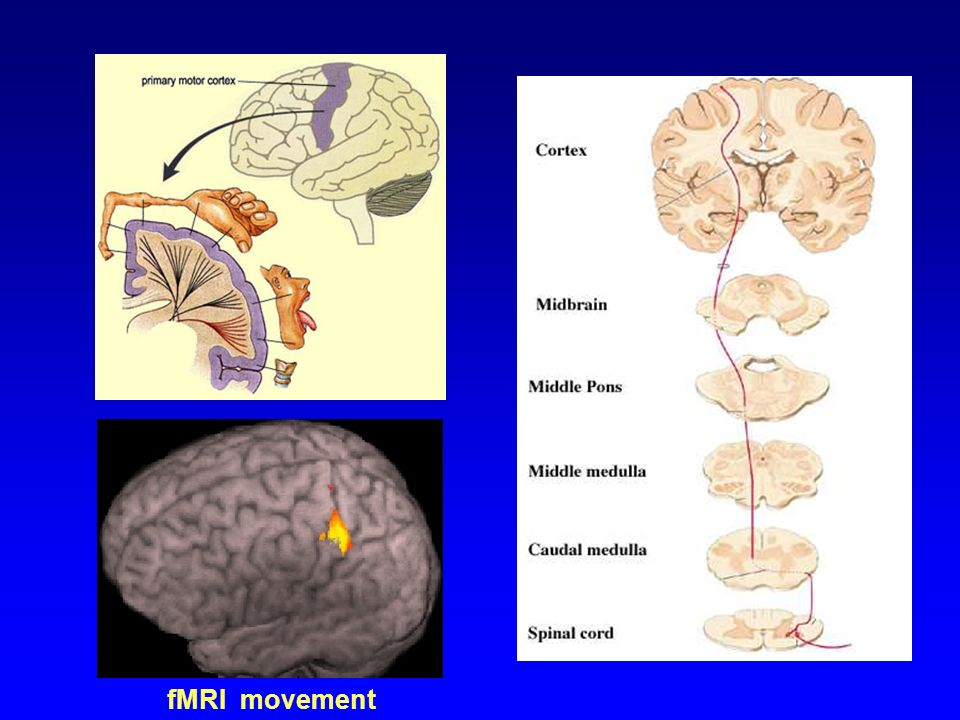 fMRI movement