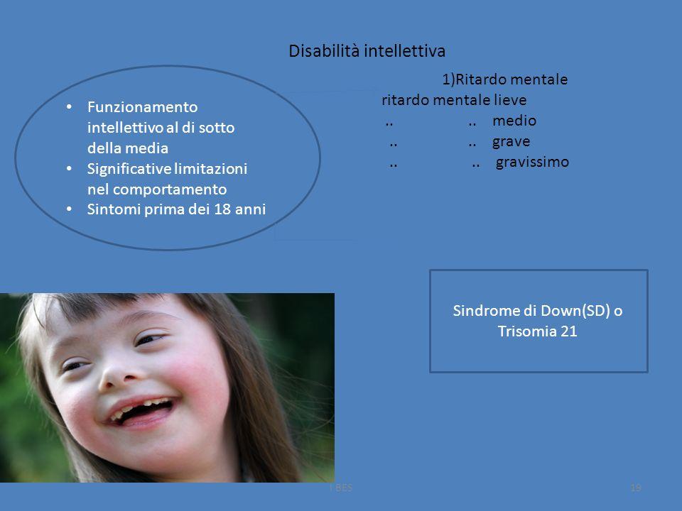 Disabilità intellettiva