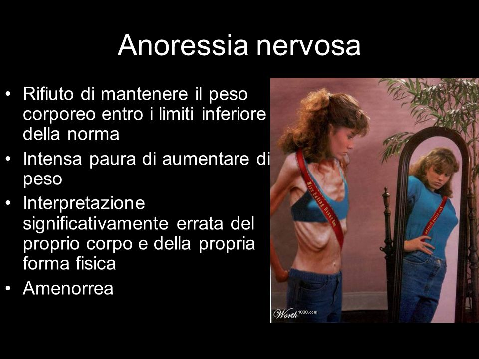 Anoressia nervosa Rifiuto di mantenere il peso corporeo entro i limiti inferiore della norma. Intensa paura di aumentare di peso.