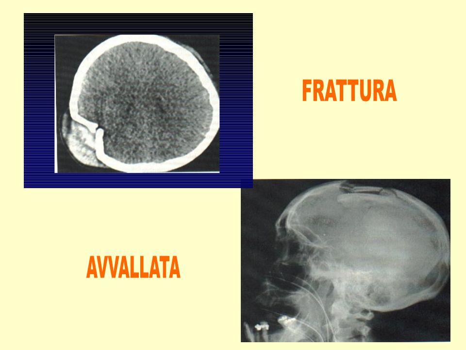 FRATTURA AVVALLATA