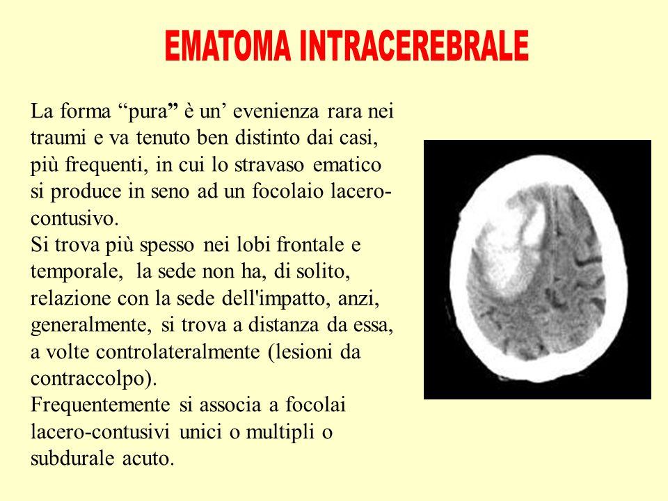 EMATOMA INTRACEREBRALE