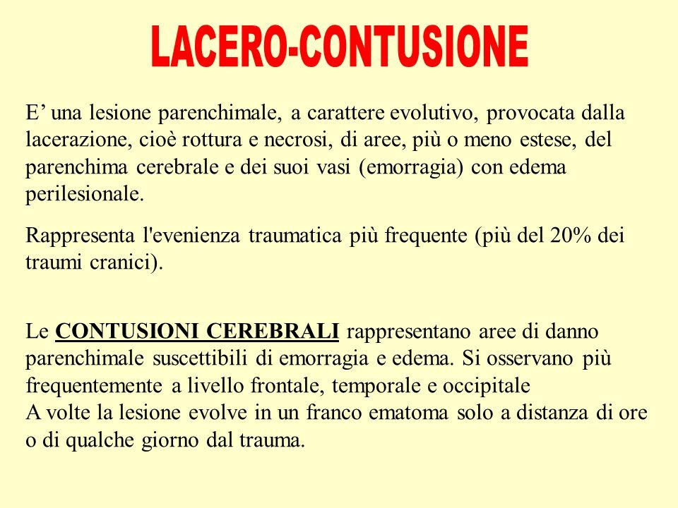 LACERO-CONTUSIONE