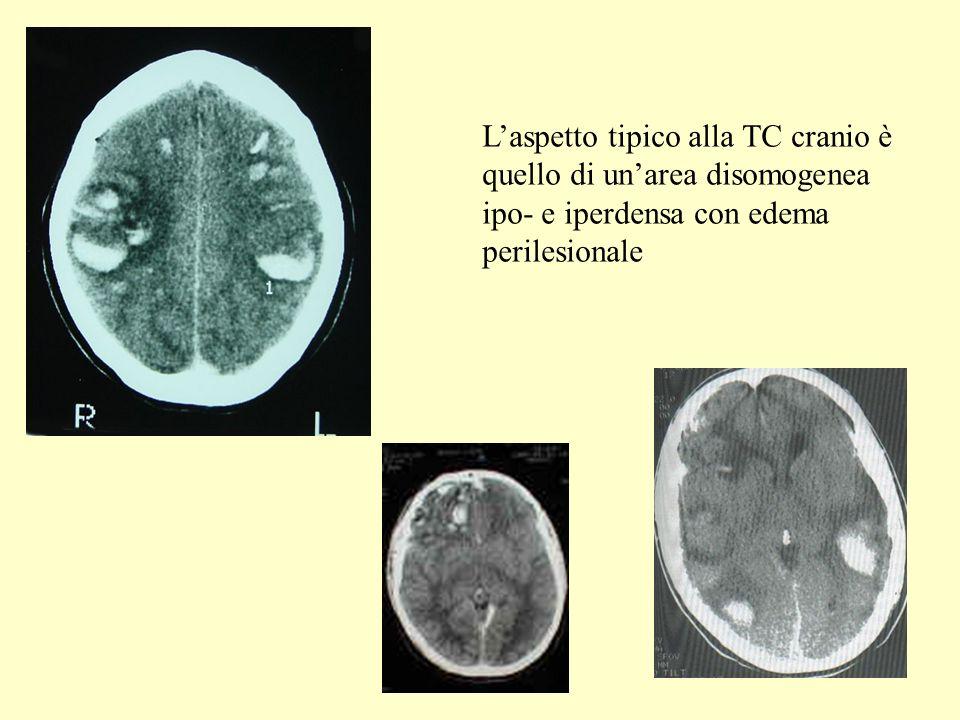 L'aspetto tipico alla TC cranio è quello di un'area disomogenea ipo- e iperdensa con edema perilesionale