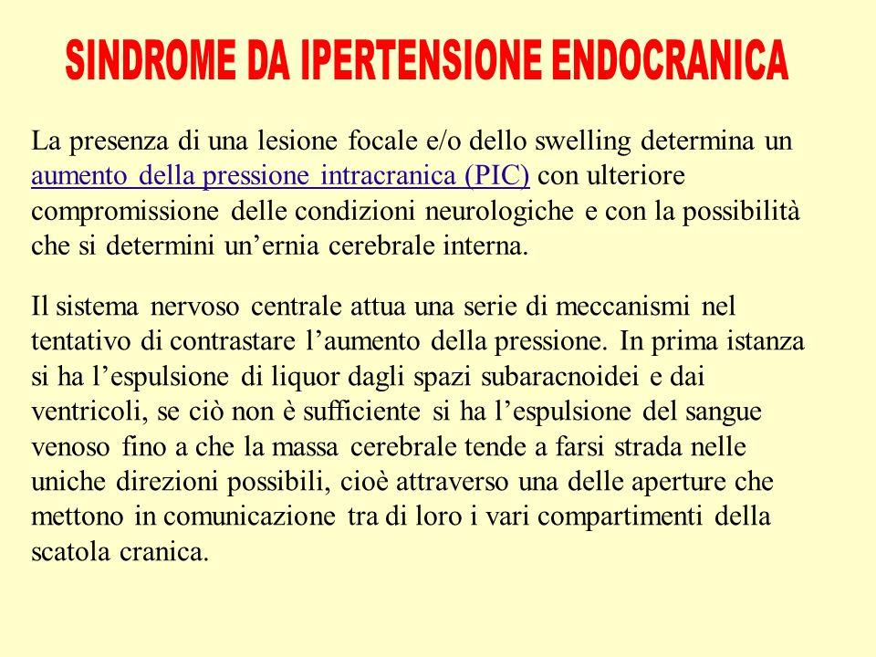 SINDROME DA IPERTENSIONE ENDOCRANICA
