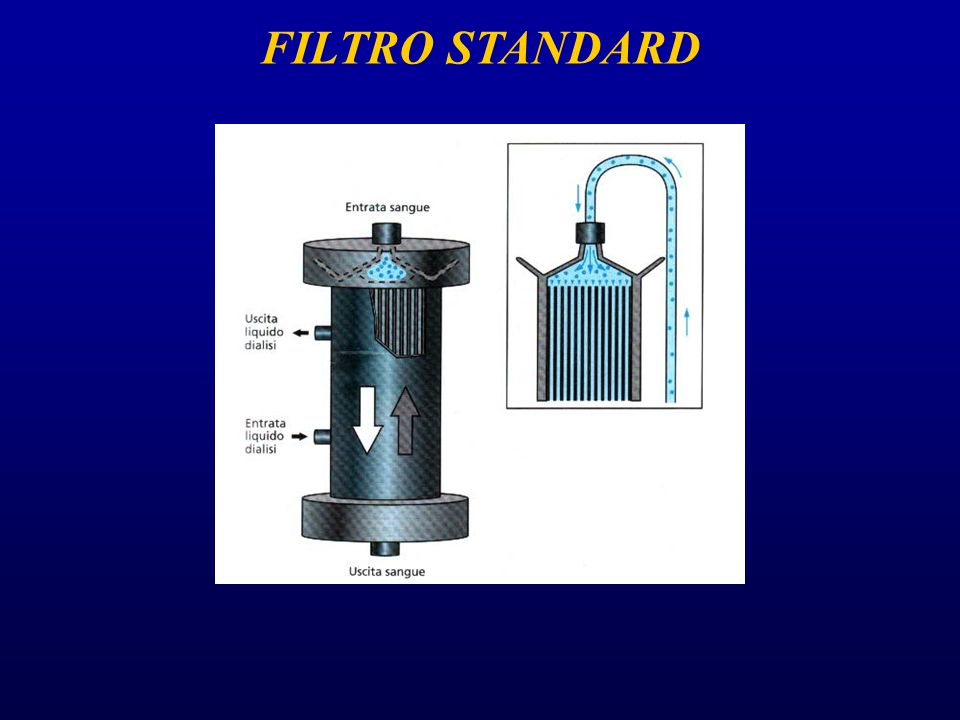FILTRO STANDARD