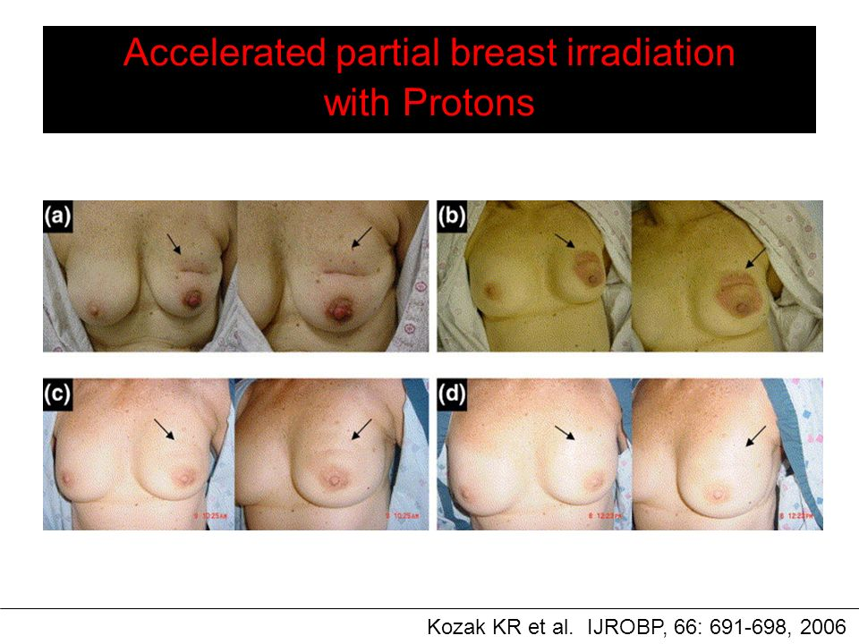 Accelerated partial breast irradiation with Protons