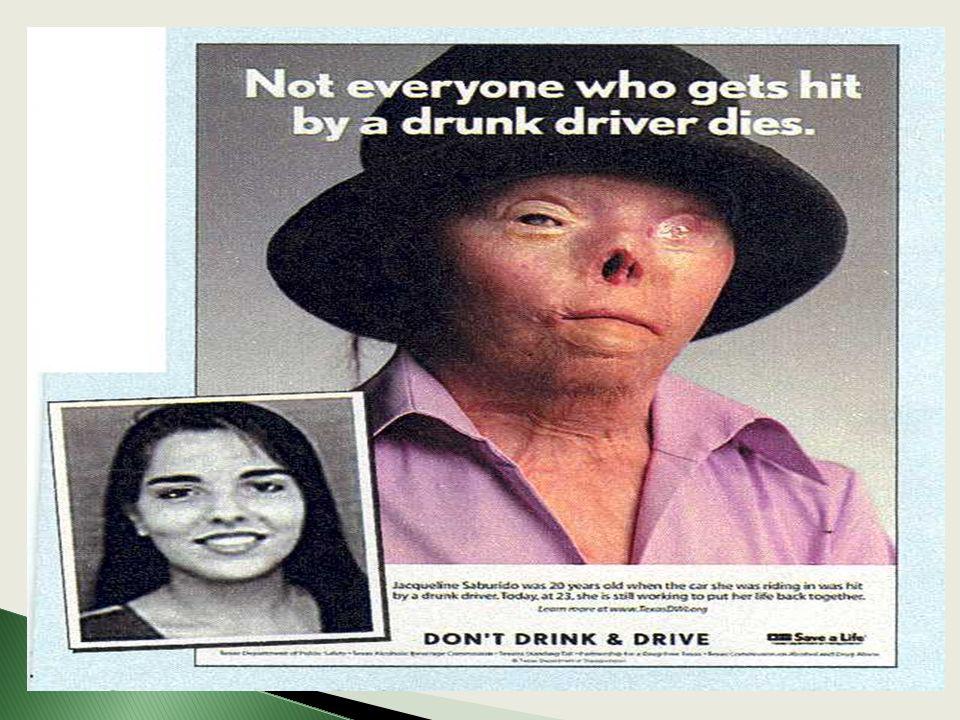 non tutti quelli che sono investiti da un autista ubriaco muoiono