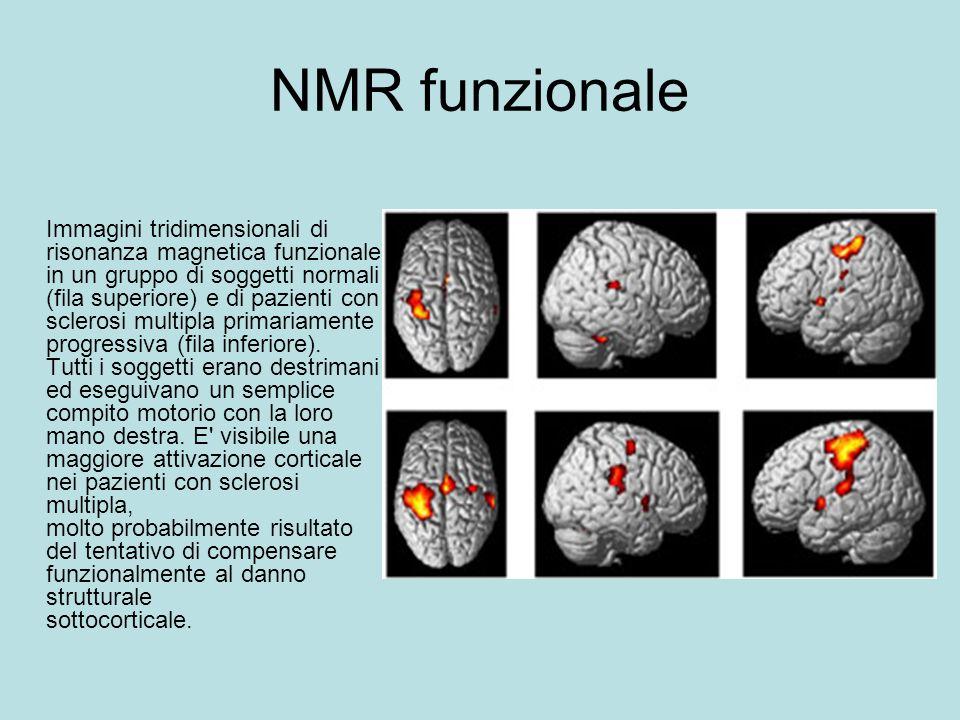 NMR funzionale