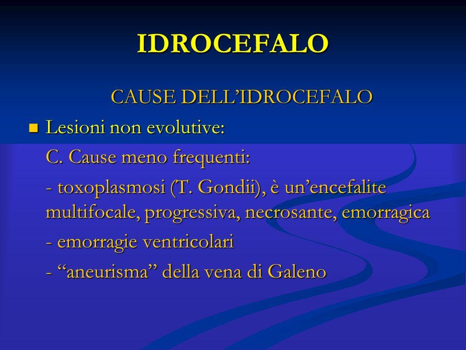 CAUSE DELL'IDROCEFALO