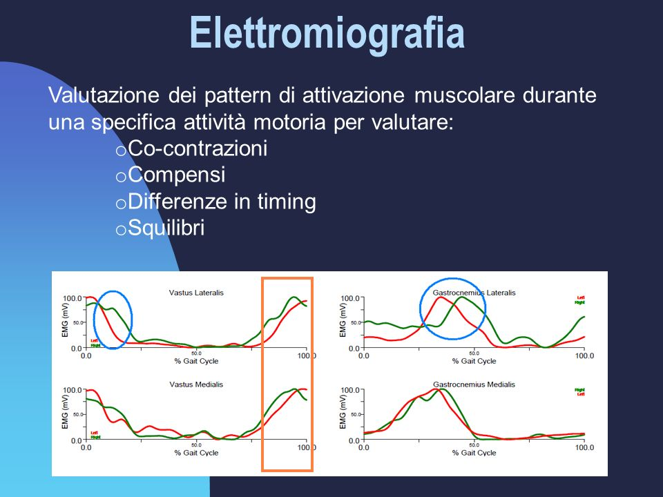 Elettromiografia Valutazione dei pattern di attivazione muscolare durante una specifica attività motoria per valutare: