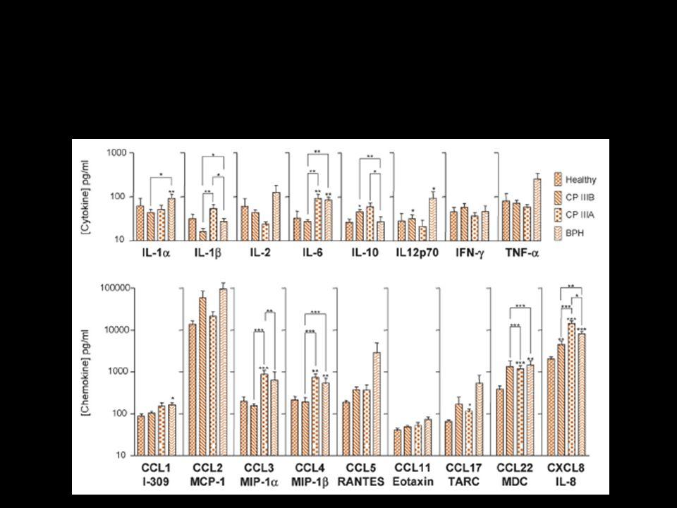 Livelli di citokine nel liquido seminale di p.ti con prostatite e IPB