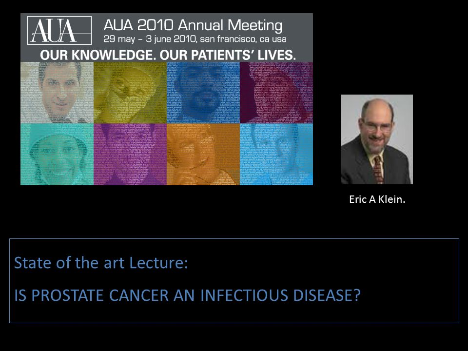 State of the art Lecture: IS PROSTATE CANCER AN INFECTIOUS DISEASE