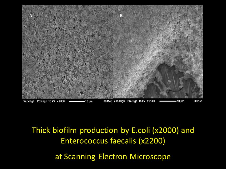 at Scanning Electron Microscope