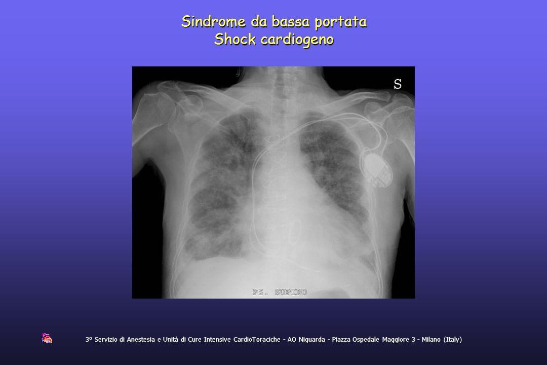Sindrome da bassa portata Shock cardiogeno
