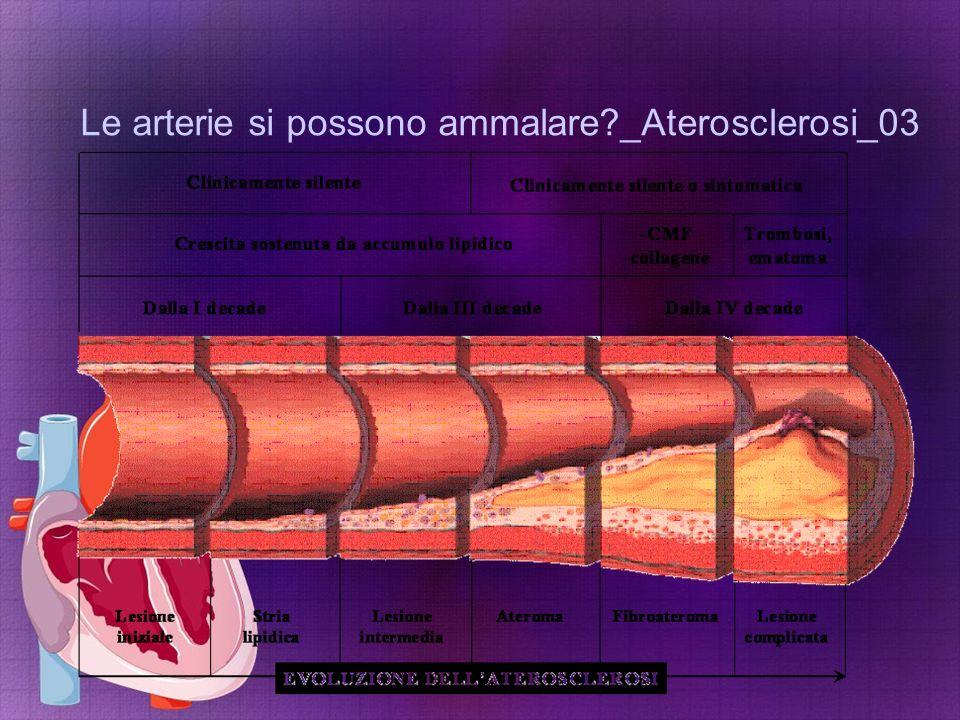 Le arterie si possono ammalare _Aterosclerosi_03