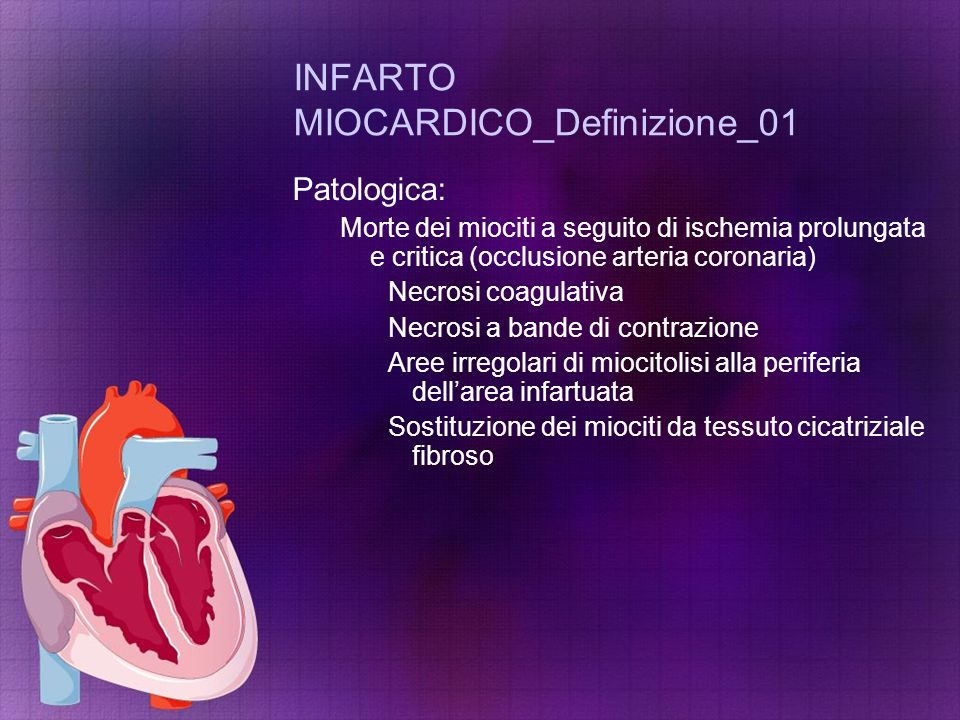 INFARTO MIOCARDICO_Definizione_01
