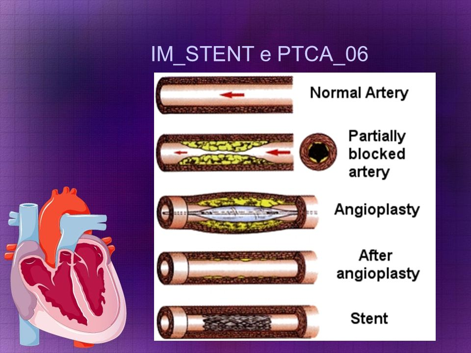 IM_STENT e PTCA_06