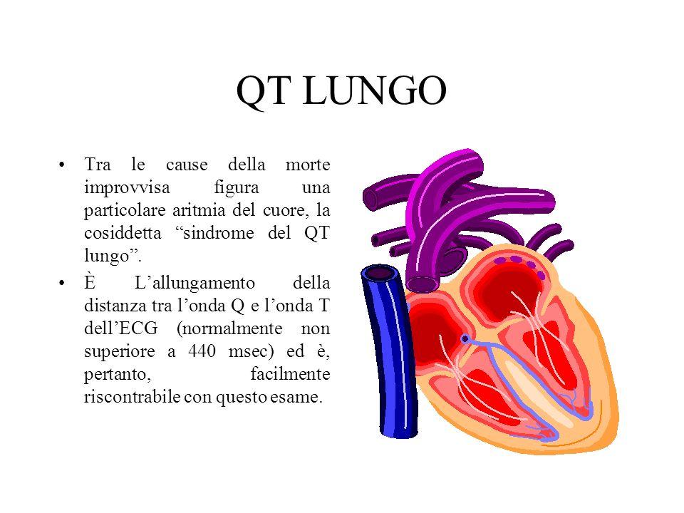 QT LUNGO Tra le cause della morte improvvisa figura una particolare aritmia del cuore, la cosiddetta sindrome del QT lungo .