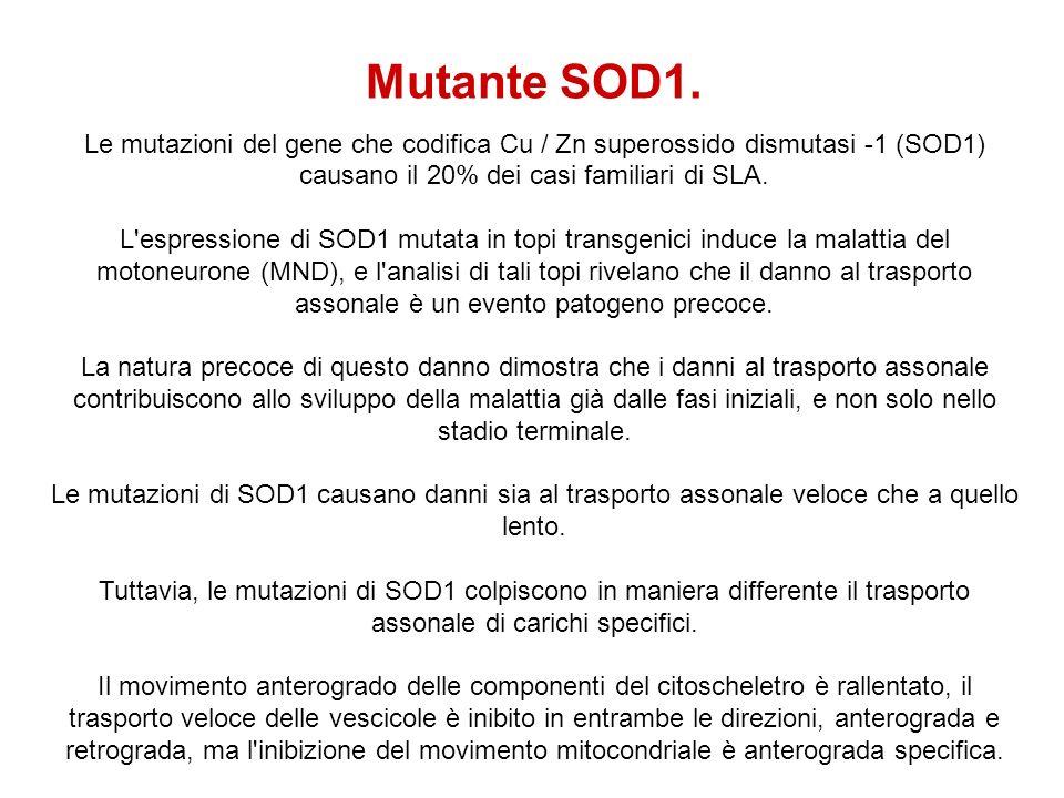 Mutante SOD1. Le mutazioni del gene che codifica Cu / Zn superossido dismutasi -1 (SOD1) causano il 20% dei casi familiari di SLA.