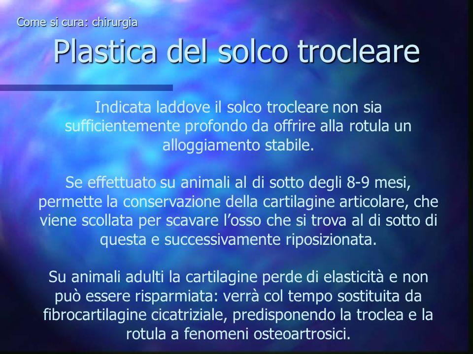 Plastica del solco trocleare