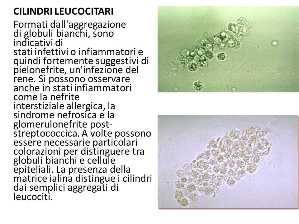 CILINDRI LEUCOCITARI Formati dall aggregazione di globuli bianchi, sono indicativi di stati infettivi o infiammatori e quindi fortemente suggestivi di pielonefrite, un infezione del rene.
