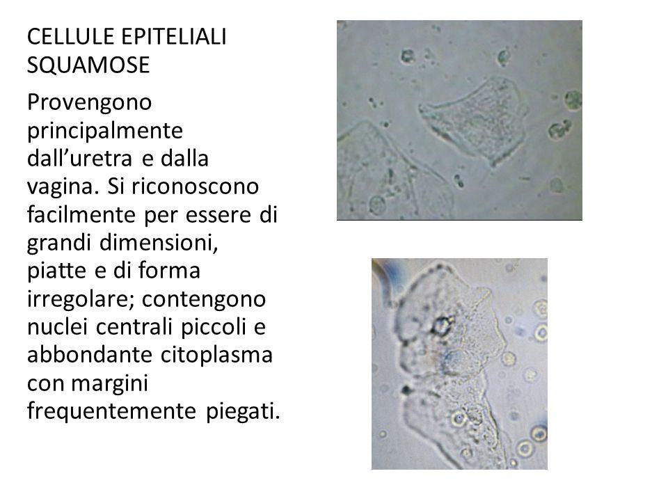 CELLULE EPITELIALI SQUAMOSE Provengono principalmente dall'uretra e dalla vagina.