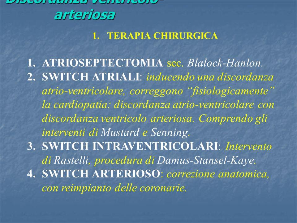 Discordanza ventricolo-arteriosa