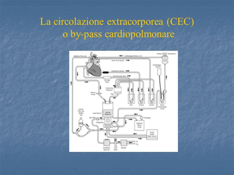 La circolazione extracorporea (CEC) o by-pass cardiopolmonare