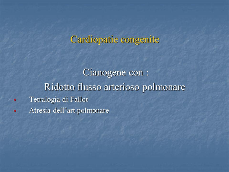 Cardiopatie congenite