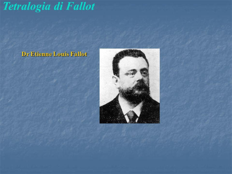 Tetralogia di Fallot Dr Etienne Louis Fallot