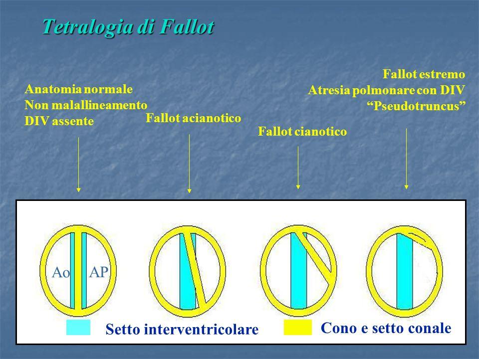 Tetralogia di Fallot Ao AP Setto interventricolare Cono e setto conale